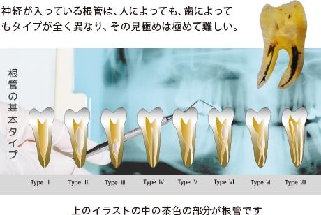 根管の基本タイプ