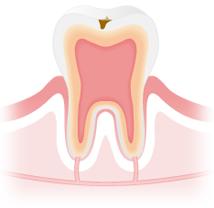 C1:虫歯の初期症状