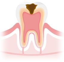 C3:歯髄まで進行