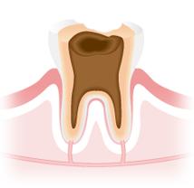 C4:虫歯の末期症状