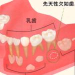お子様の先天性欠如歯について