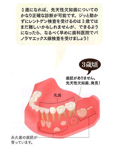 先天性欠如歯について