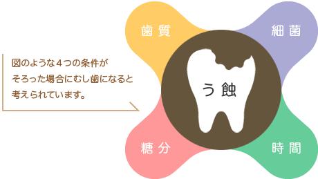 歯質、細菌、糖分、時間の4つの条件が揃った場合に虫歯になると考えられています。